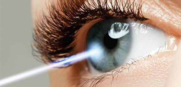 laser-trabeculoplasty